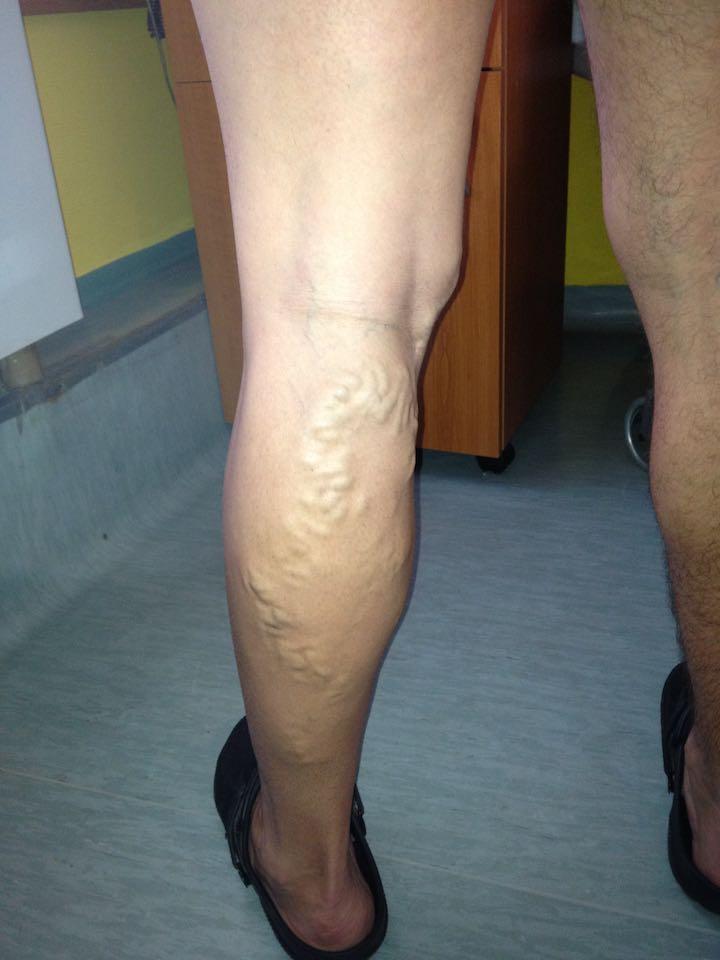 hogyan lehet gyógyítani a visszér műtét nélkül hogyan kell bekenni a láb visszerét