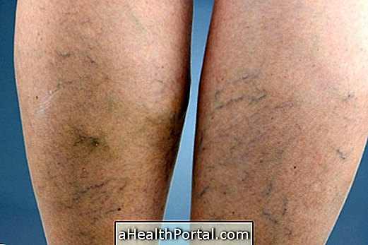 hogyan lehet eltávolítani a varikózisos vénákat visszér a lábakon milyen következményekkel jár