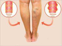 a visszerek szuper kezelése lehetséges-e a varikózisos erek tisztítása