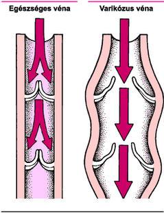 a varikózus vénáktól a láb kenőcsén