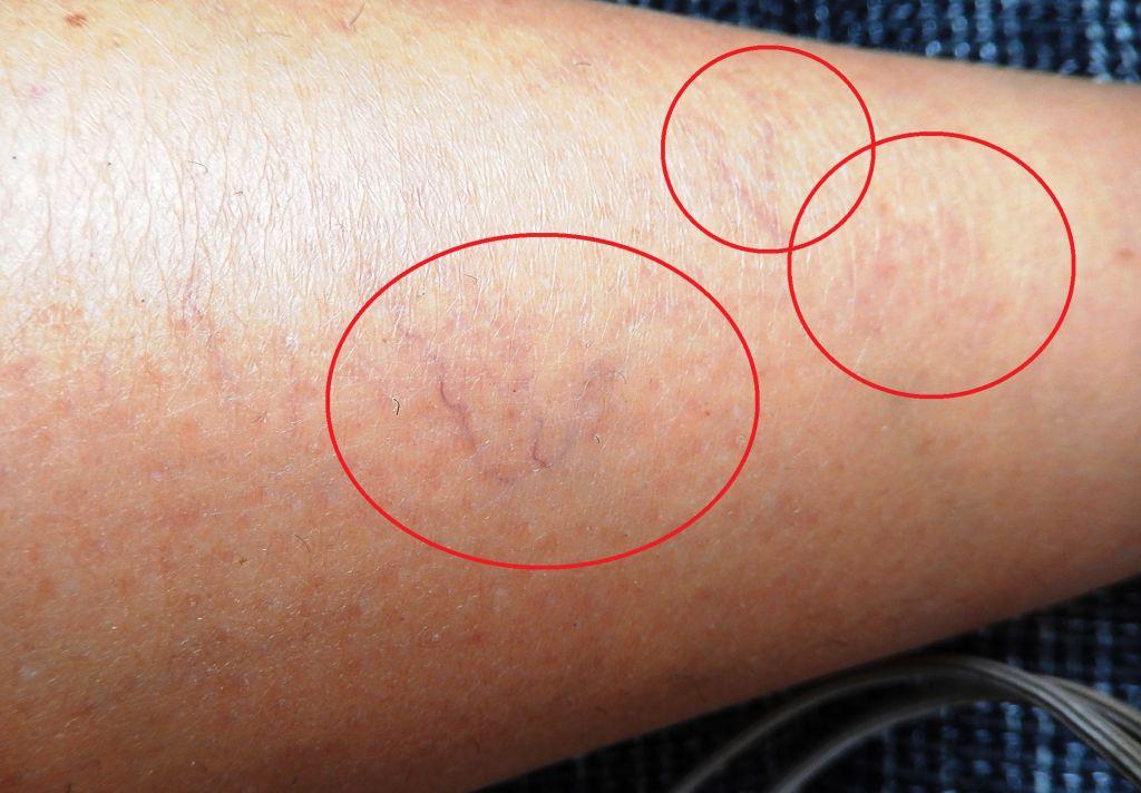 a visszerek szuper kezelése lehetséges a varikózis a kezeken