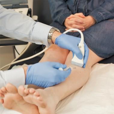 Visszérvonal: Információs vonal - Seprűvéna: Injekciós kezelés