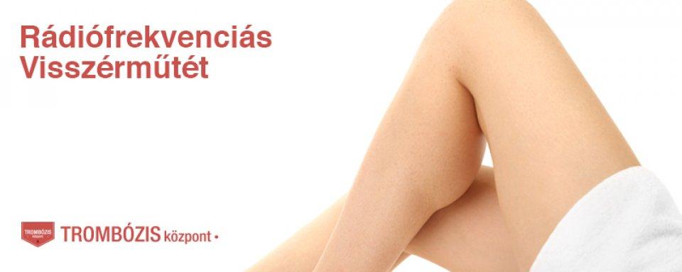 visszér készülék visszeres véraláfutás a lábfejben