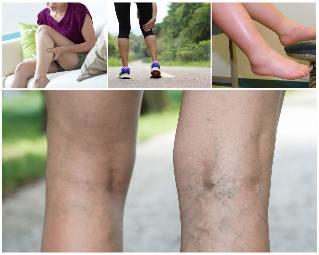 visszeres háló a lábakon kezelés