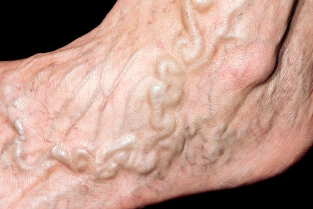 visszér vasculitis kezelése fekélyek visszér kenőcs