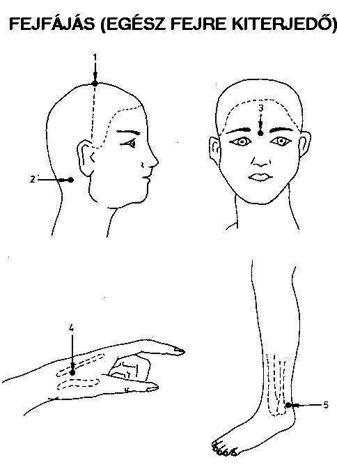 Meridián Természetgyógyászati Rendelő – Akupresszúra