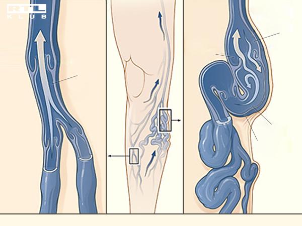 kick-box és visszér szövődmények a varikózis után a lábakon