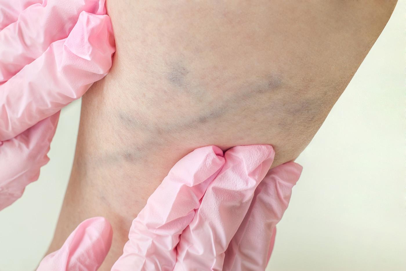 vérrögökkel járó visszérműtét
