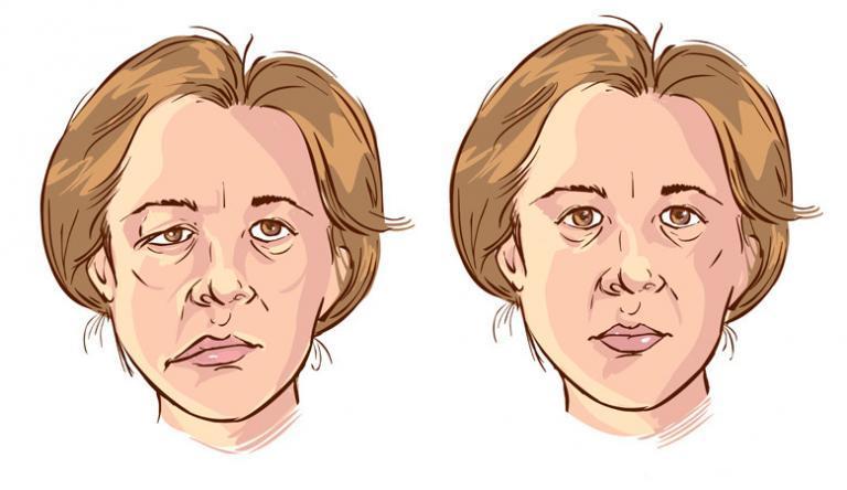 az orr visszeres kezelése