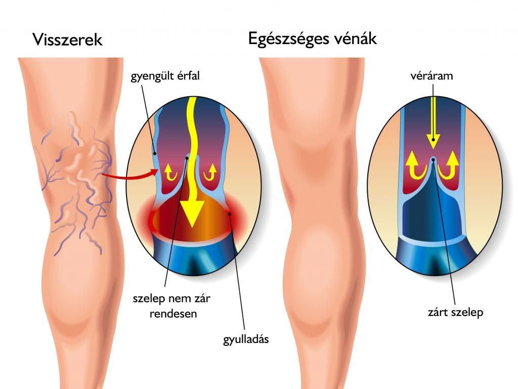 Herevisszér-tágulat - Okok, tünetek és kezelés