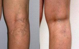 visszerek esetén megengedett gyakorlatok lehetséges a varikózis a kezeken
