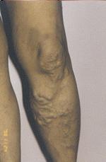 visszér és kolonoszkópia a bal láb megdagad a visszérben