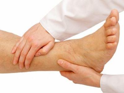 Visszér kezelése a kéz reflexmasszázsával