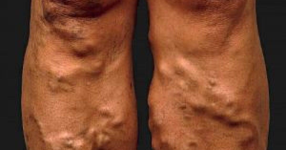 c-vitamin visszér videó hogyan kell kezelni a lábak visszérbetegségét
