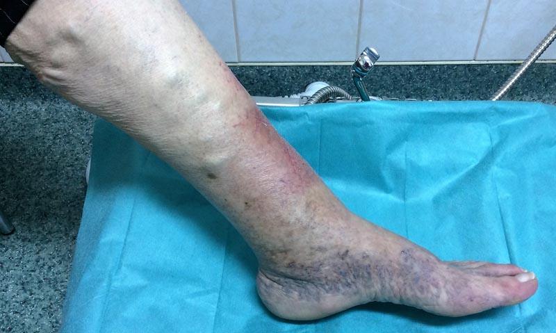 a lábak pigmentációja visszeres fotóval égeti a vénákat visszér