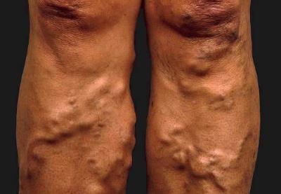 visszér kialakulása a lábakon hogyan kezeljük a lábak visszérét népi gyógymódokkal