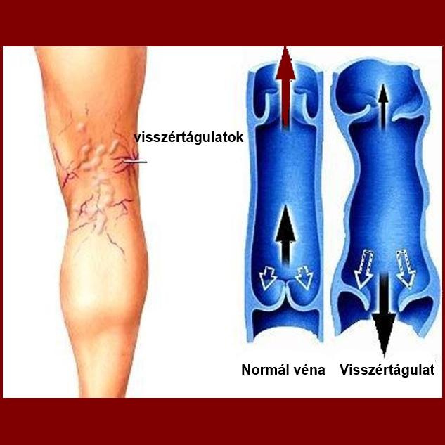 mondja meg, hogy a lábakon visszér visszér hatékony krémek