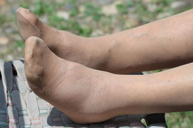 venotonic a láb visszérinjekcióinál