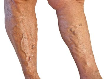 Krónikus varikozusok tiszta lábak ára nizhny novgorodban