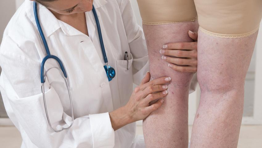 hogyan lehet megerősíteni a lábakat a visszér ellen visszér fiziológia