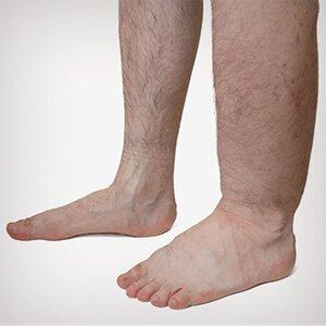 a lábak zsibbadása visszér