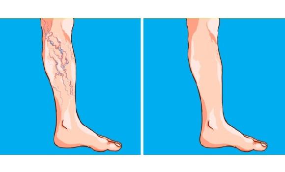 mi fenyegeti a visszereket a lábakon milyen gyakorlatok a varikózisos lábak számára