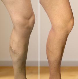 vélemények műtét után visszerek a lábakon