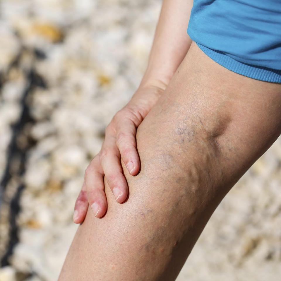 Mélyvénás trombózist okozhat az elhanyagolt visszérgyulladás! - EgészségKalauz
