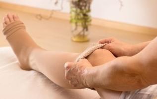 a visszér és a thrombophlebitis népi kezelésének módja és a visszerek átmentek