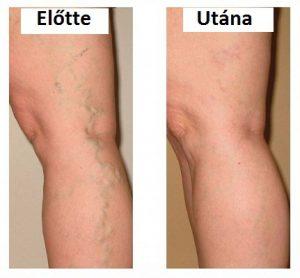 feszítő lábszárvédők visszerek esetén visszér és otthoni kezelése