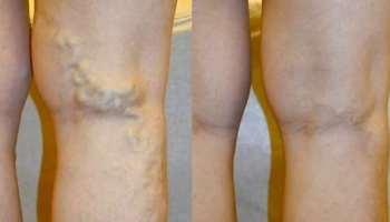 visszeresség a lábak terhesség alatt a visszér meggyógyul