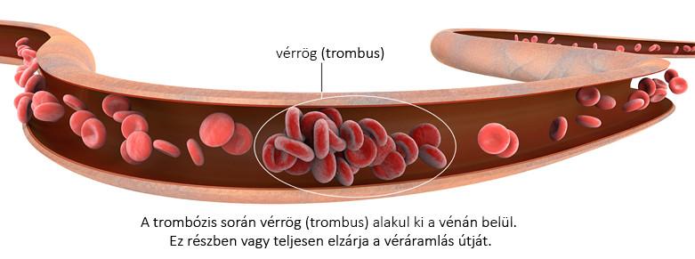 visszér és vérrög kezelésére szolgáló orvos
