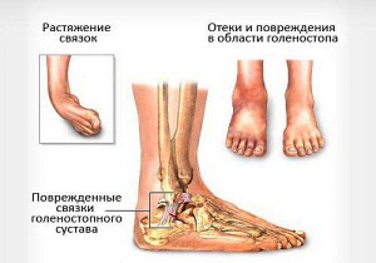 Hagyományos gyógyszer a láb varikózisának kezelésére