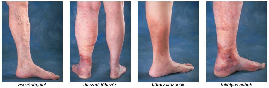 a varikózis tüneteinek okai a lábakon visszér kezelése mely orvos