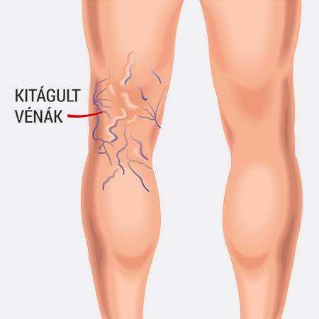 pakolás a láb visszérért az alsó végtagok varikózisának műtéti kezelése
