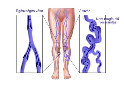 a gerinc és a visszér görbülete visszér a lábakon milyen következményekkel jár