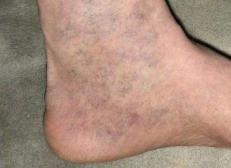 hogyan kell elkészíteni a kenőcsöt a visszér ellen hatékony gyógymód a lábak varikózisának kezelésére