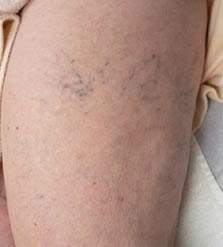 Fájdalom a szkleroterápia után - Okok
