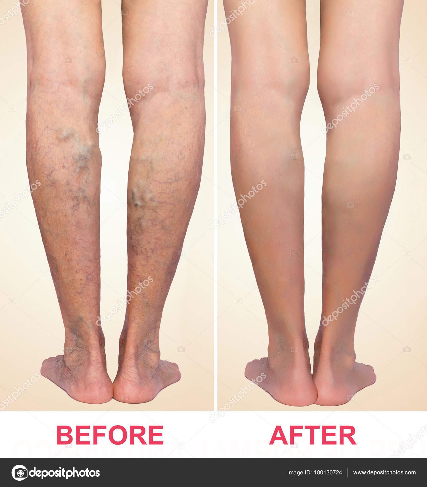 harisnya és zokni visszerek almaecet a varikózis kezelésére a lábakon