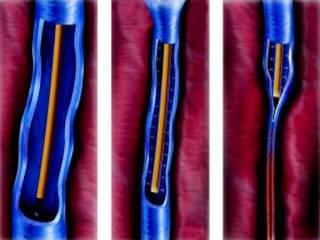 Lézeres visszérkezelés - és műtét, melyik a jobb? - EgészségKalauz