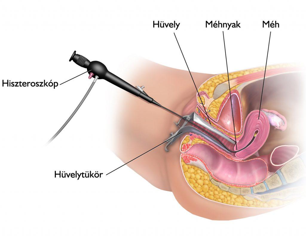 phlebodia a kismedencei szervek visszérrel viszkető lábak visszér