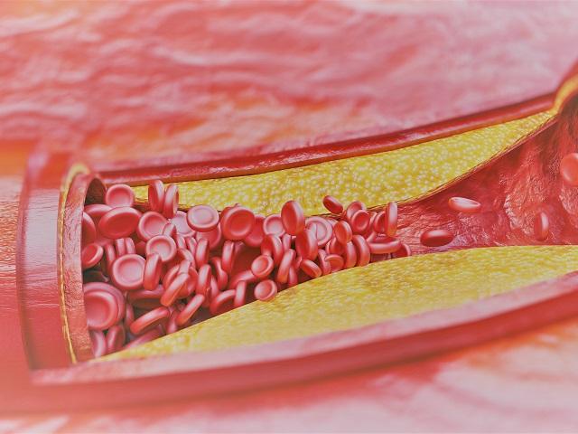 A thrombophlebitis kivizsgálása, kezelése