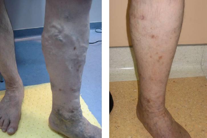 hogyan lehet visszafejteni az ecetet a lábadra lehetséges-e kenőcsöket alkalmazni a visszér ellen