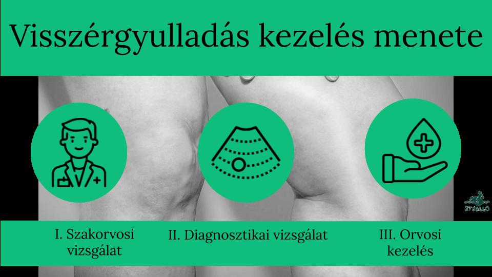 Segít a bischofite a visszérben visszerek a terhesség alatt