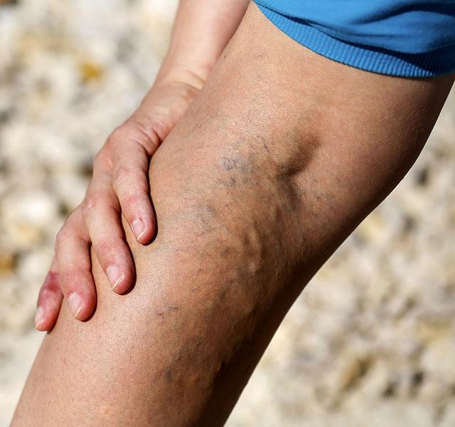 népi módszer a láb visszér kezelésére térdmagasságot vásároljon a visszérben