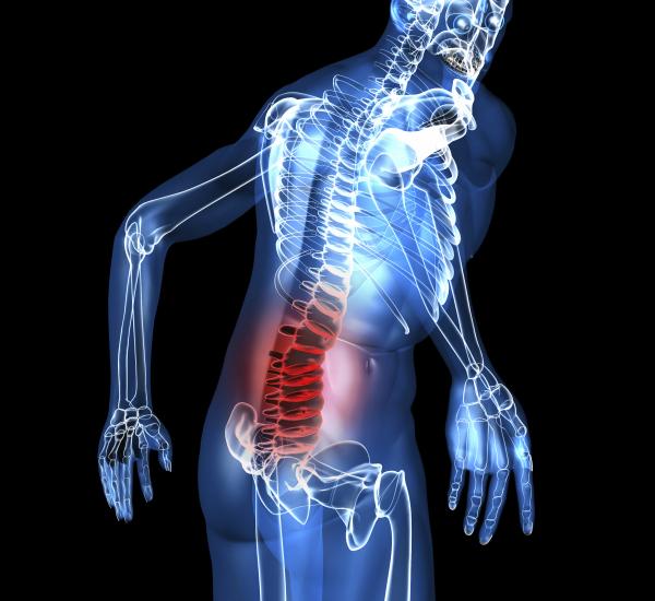 visszér a gerinc sérvéből