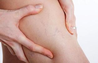 harisnya venotex visszérből ortopéd talpbetét visszér vélemények