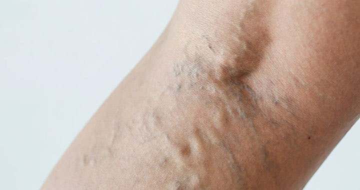 visszér a terhesség alatt a lábon