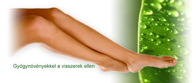 Hogyan csökkenthető a visszeres láb fájdalma? 10 tipp az orvostól és természetgyógyásztól!