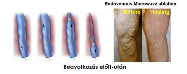 visszér kezelési standard a visszerek külső jelei a lábakon